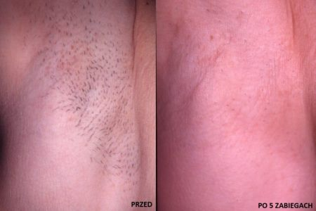 epilacja laserowa